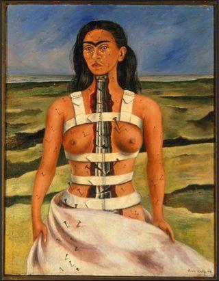 Frida Kahlo The Broken Column High Museum Atlanta Frida & Diego